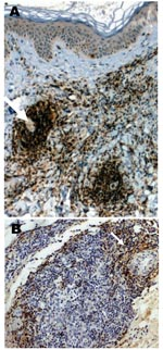 Thumbnail of A case of lymphocytoma. A) Immunohistochemical image with anti-CD20 antibody showing a nodule with a dense B-lymphocytes infiltrate in the dermis; magnification ×100. B) Immunohistochemical image with anti-CD45 Ro antibody showing T-lymphocytes at the periphery of a nodule; magnification ×250.
