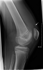 Thumbnail of Lateral radiograph of right knee demonstrating suprapatellar effusion without acute osseous injury (arrow).