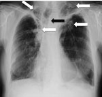 Thumbnail of Chest radiograph showing bilateral upper lobe chronic pulmonary aspergillosis, which can be easily mistaken for pulmonary tuberculosis. White arrows indicate areas of abnormality (some pleural thickening and opacification) in both apices, which are similar, although slightly more obvious, to findings in pulmonary tuberculosis. Black arrow indicates the trachea pulled to one side by the contraction and fibrosis on that side. Image used with permission of David Denning (©2016, all rig
