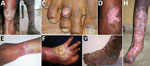 Thumbnail of Clinical forms of chromoblastomycosis caused by Fonsecaea sp., Madagascar. A) Plaque; B) mixed: tumorous and cicatricial; C) nodular; D) raised plaque; E) plaque; F) cicatricial; G) tumorous caused by Cladophialophora carrionii; H) mixed: cicatricial and modified by previous therapy.